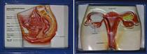 Bagian dalam kiri dan kanan alat reproduksi wanita KIE Kit
